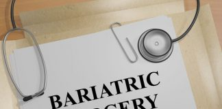 bariatric surgery guide
